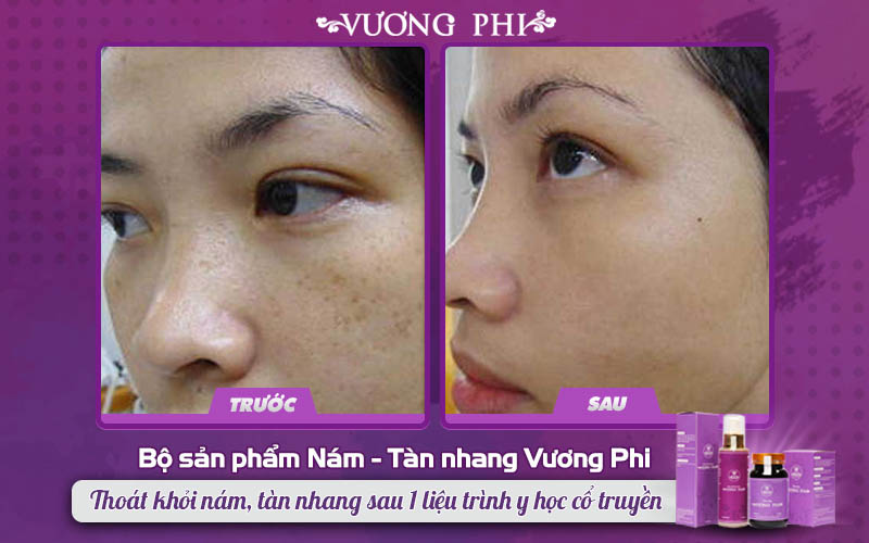 """Khách hàng cải thiện tàn nhang """"ngự trị"""" da mặt tới 85%"""