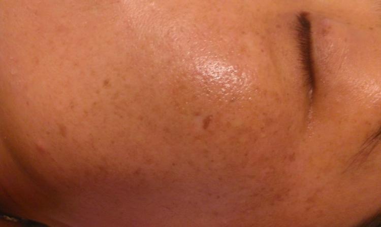 Da đen sạm và xuất hiện các đốm nâu mờ mờ có phải bị nám da
