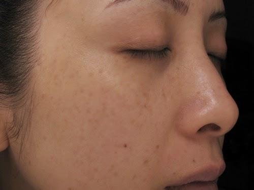 Nám da mặt càng để lâu càng khó phai - Cần chữa trị gấp