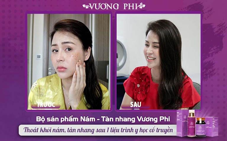 Diễn viên Lương Thu Trang trước và sau sử dụng Vương Phi trị nám tàn nhang