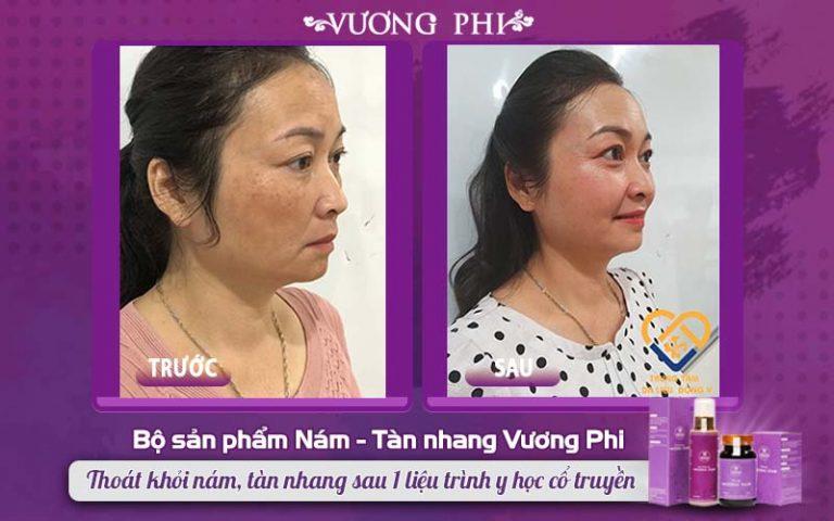 Cận cảnh làn da cô Hồng Vân trước - sau điều trị nám, tàn nhang bằng Vương Phi
