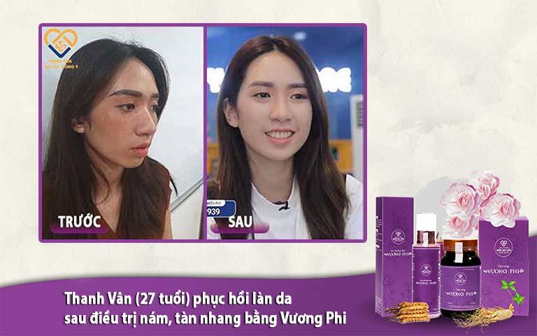 Thanh Vân (27 tuổi) lấy lại làn da rạng rỡ, không tì vết sau điều trị nám, tàn nhang bằng Vương Phi