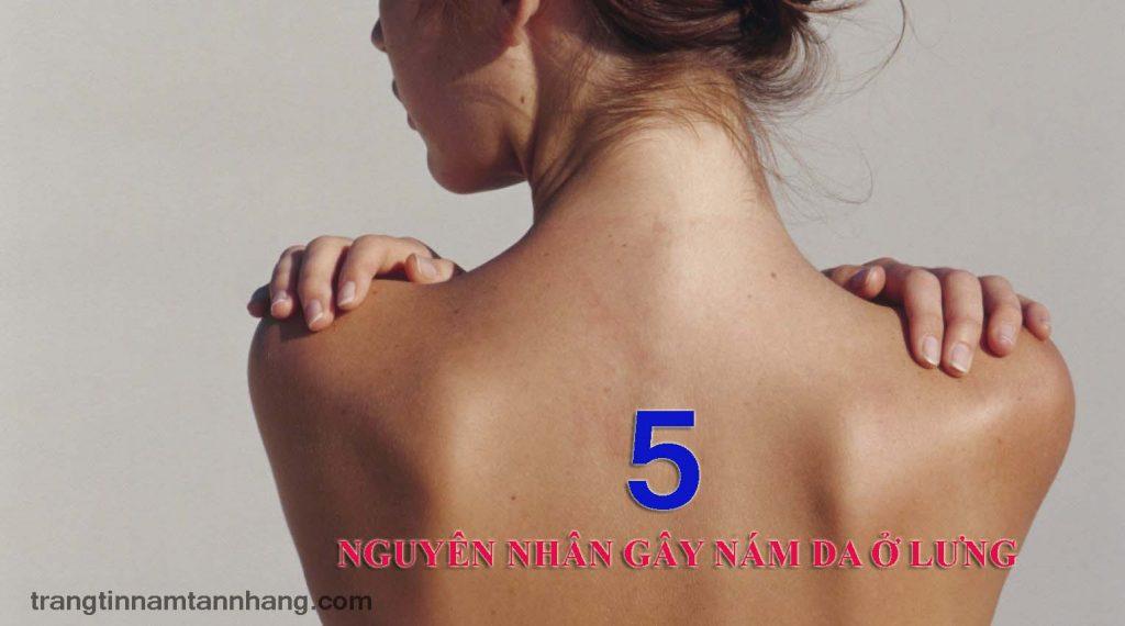 5 nguyên nhân gây nám ở lưng