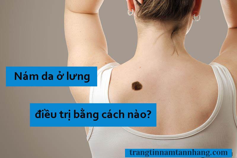 Nám da ở lưng điều trị bằng phương pháp nào?