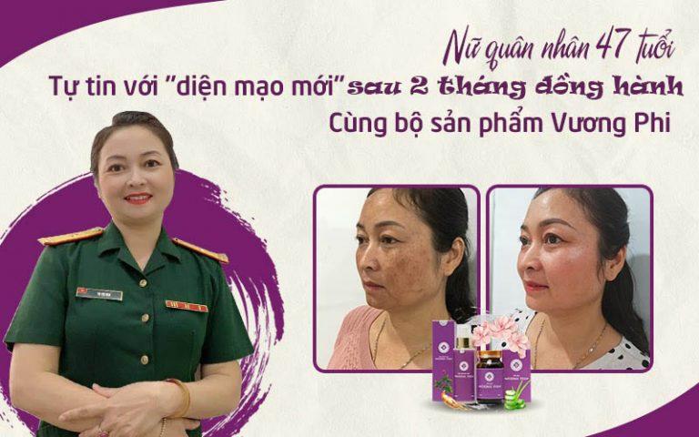Xem thêm hành trình trị nám của thiếu tá Tạ Thị Vân TẠI ĐÂY