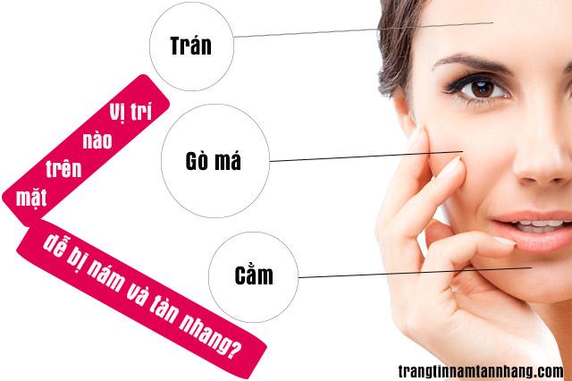 Vị trí nào trên mặt dễ bị nám và tàn nhang nhất?