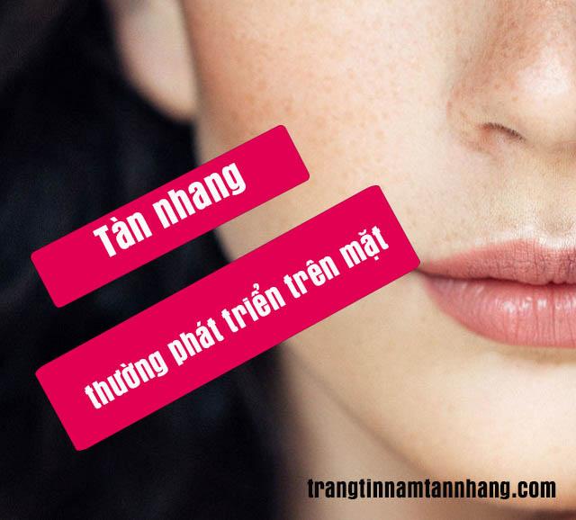 Nám da, tàn nhang thường phát triển trên mặt