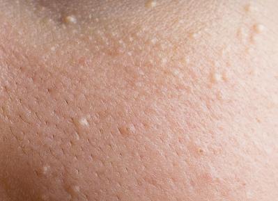 Mụn đầu trắng có nên nặn không ? Điều trị thế nào hiệu quả ?