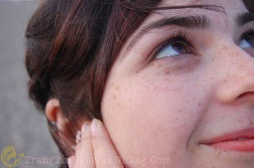 Dấu hiệu tàn nhang trên da