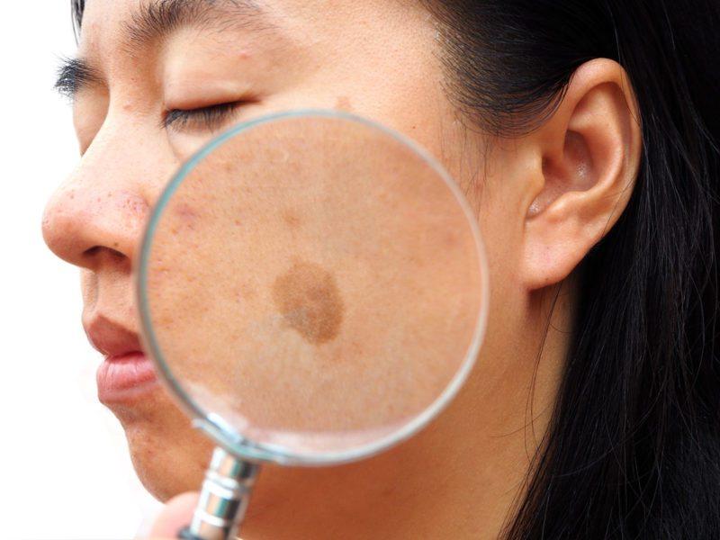 Triệu chứng nám da mặt