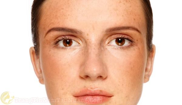 Dấu hiệu tàn nhang quanh mắt