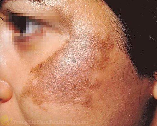 Dấu hiệu của nám da trên mặt