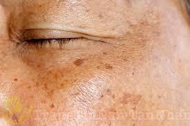 Đốm đồi mồi trên da mặt