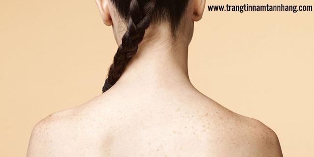 Nguyên nhân gây tàn nhang ở lưng