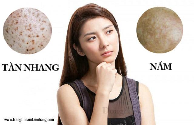 Tàn nhang và nám da khác nhau như thế nào?