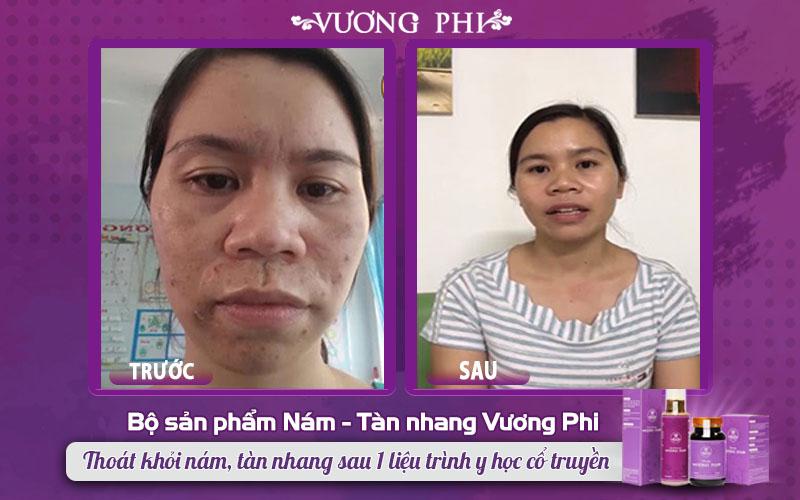 """Khách hàng Phạm Thị Nụ """"hồi sinh"""" làn da sau điều trị nám nặng kết hợp mụn"""
