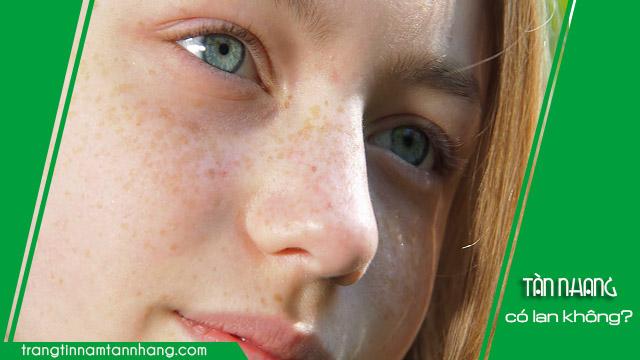 Tàn nhang có lan ra các vùng da khác không ?