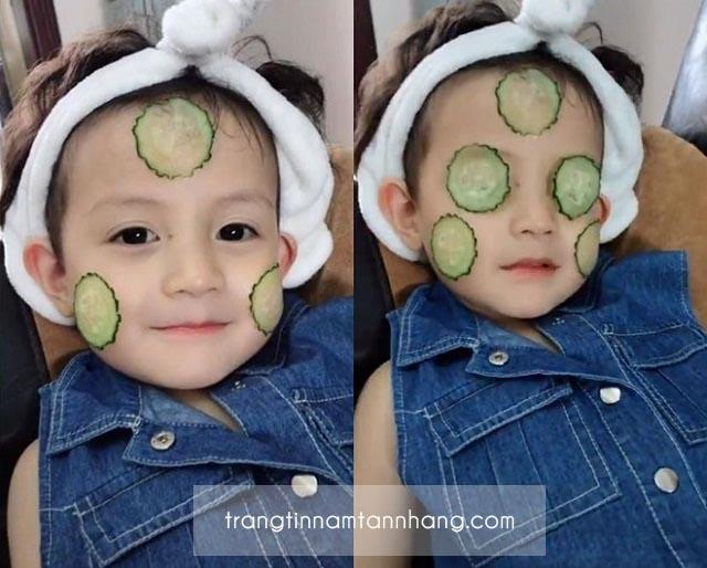 Nám da ở trẻ em - Điều trị bằng cách nào?