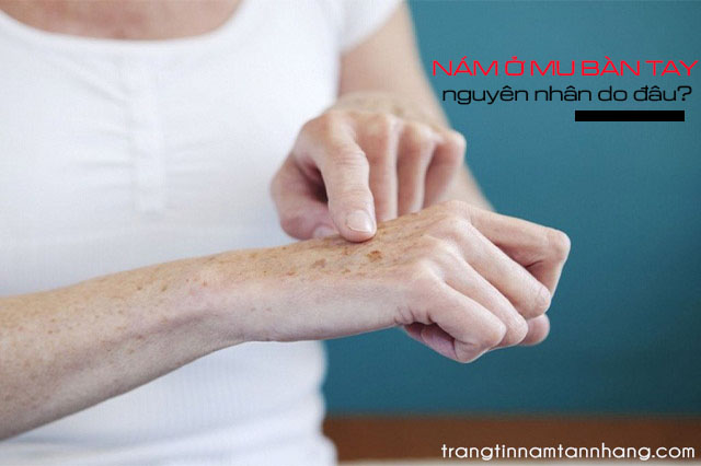 Nám xuất hiện ở mu bàn tay điều trị thế nào?