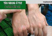Trị tàn nhang ở tay