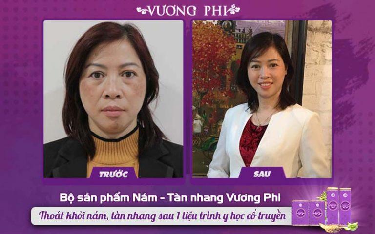 Chị Kim Hoa loại bỏ nám sạm thành công với bộ sản phẩm Vương Phi