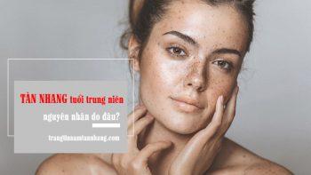 Lý do khiến phụ nữ trung niên dễ gặp phải tàn nhang