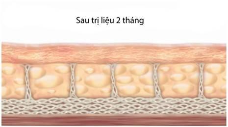 Kết quả sau 2 tháng sử dụng công nghệ trẻ hóa da Hifu