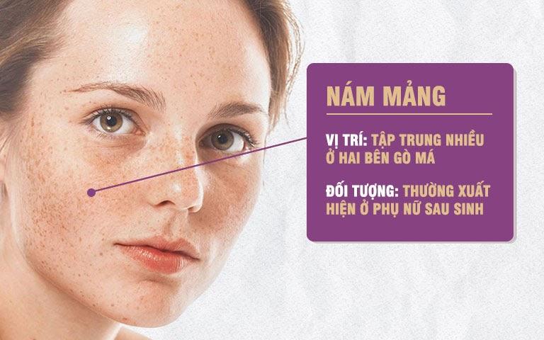 Nám mảng khiến da mặt chi chít các vết nám