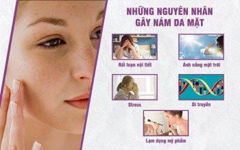 Có rất nhiều nguyên nhân gây ra tình trạng nám da