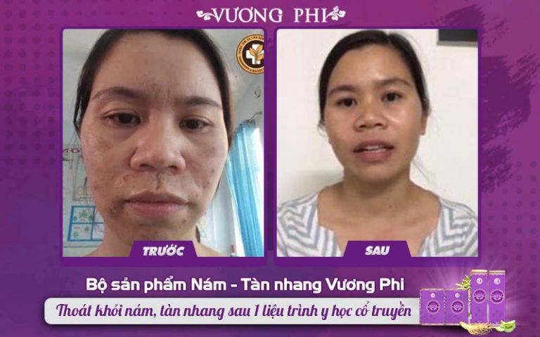 Tình trạng da của chị Nụ được cải thiện toàn diện sau khi dùng BSP Vương Phii