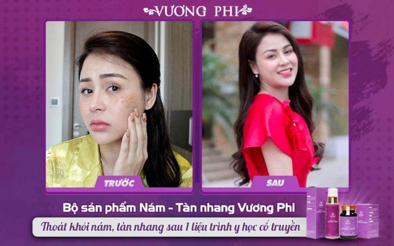 Hình ảnh trước và sau điều trị của diễn viên Lương Thu Trang