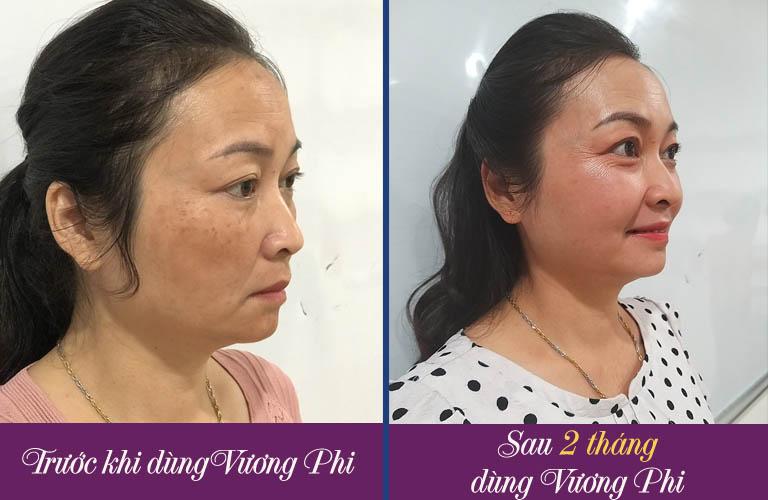 Cựu Thiếu tá Tạ Thị Vân cải thiện hơn 80% nám da, tàn nhang với Vương Phi chỉ sau 2 tháng