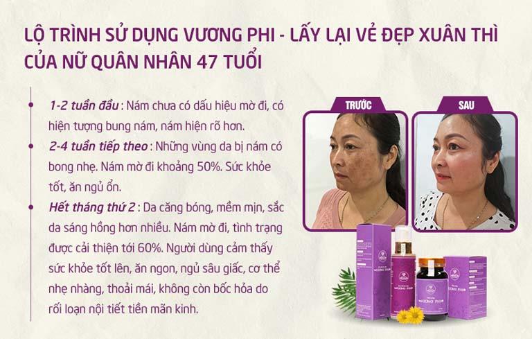 3 giai đoạn tiến triển làn da, cơ thể của khách hàng Hồng Vân sử dụng bộ sản phẩm Vương Phi