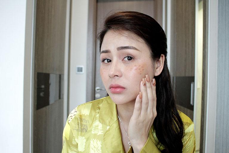 Diễn viên Lương Thu Trang trước thời điểm dùng bộ Vương Phi hỗ trợ điều trị nám, tàn nhang