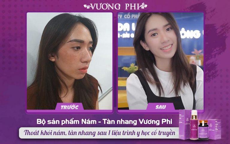 Khách hàng Thanh Vân (nhân viên văn phòng) cải thiện tàn nhang sau 2 tháng điều trị