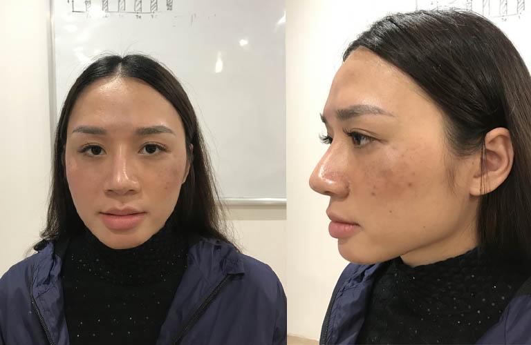 Trên mặt chị Hương xuất hiện nhiều vết nám, tàn nhang, đặc biệt là hai bên má