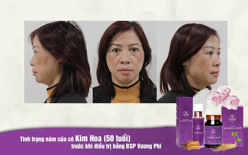 Cô Kim Hoa bị nám sạm gần như cả khuôn mặt