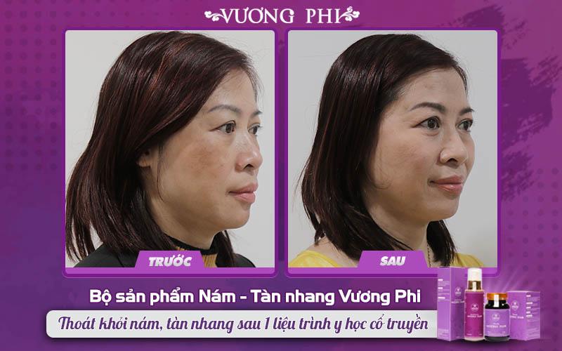 Hình ảnh cô Kim Hoa TRƯỚC - SAU điều trị nám sạm