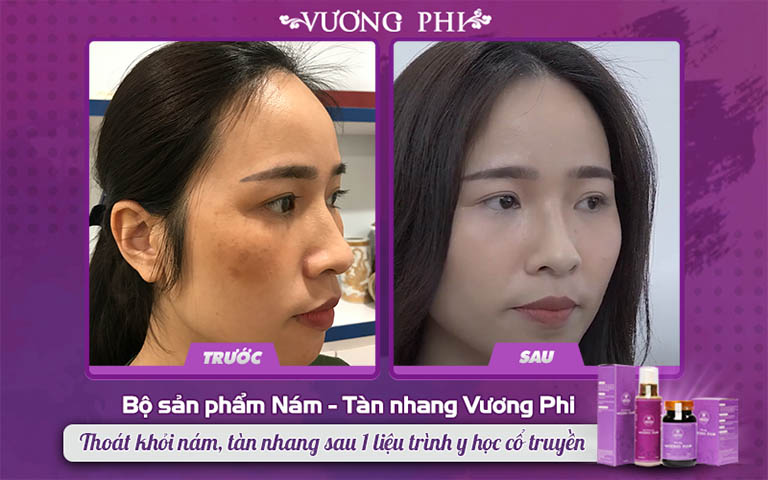 """Kết quả sử dụng bộ sản phẩm nám tàn nhang Vương Phi của """"mẹ trẻ"""" Thanh Thảo"""