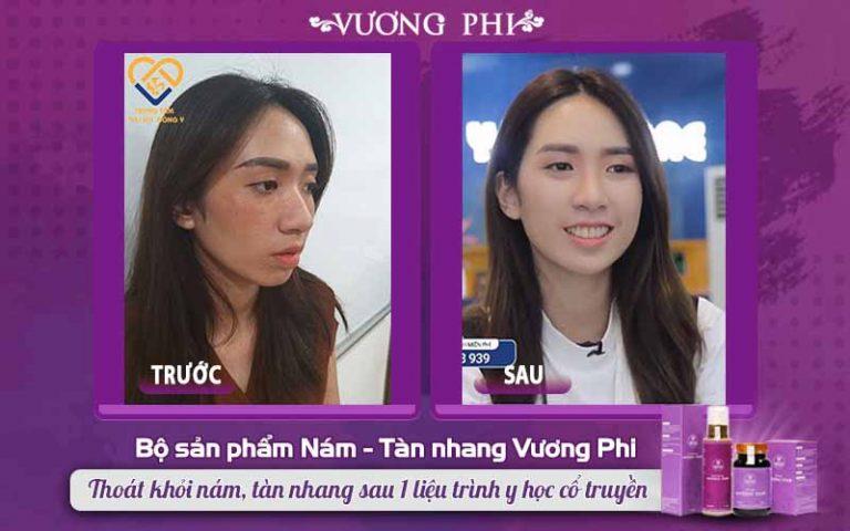 Sự thay đổi lớn TRƯỚC - SAU 2 tháng Thanh Vân sử dụng Vương Phi trị tàn nhang, nám
