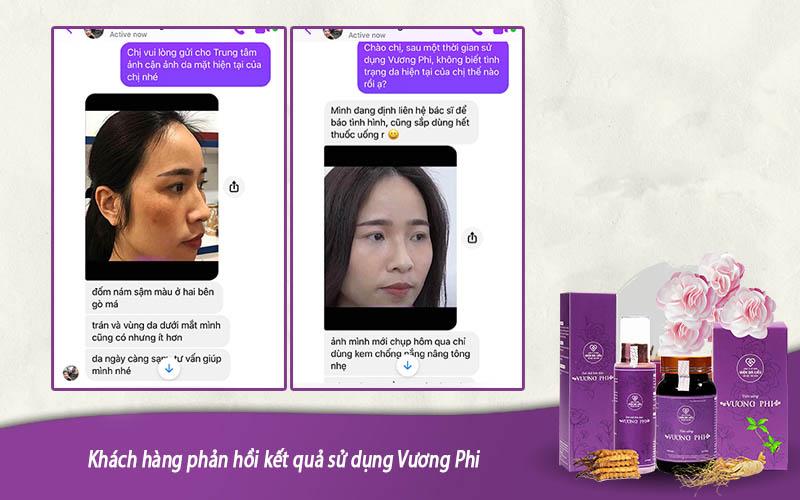 Khách hàng Thanh Thảo cải thiện làn da nám sau khi sử dụng bộ sản phẩm Vương Phi