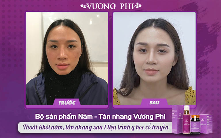 Diện mạo chị Thu Hương (phải) cải thiện nhiều so với trước khi điều trị (trái)