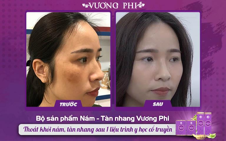 Hình ảnh làn da chị Thanh Thảo trước và sau dùng Bộ sản phẩm Vương Phi 2 tháng