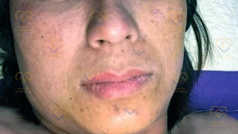 Làn da trở nên già nua và xỉn màu sau khi trị nám bằng kem trộn