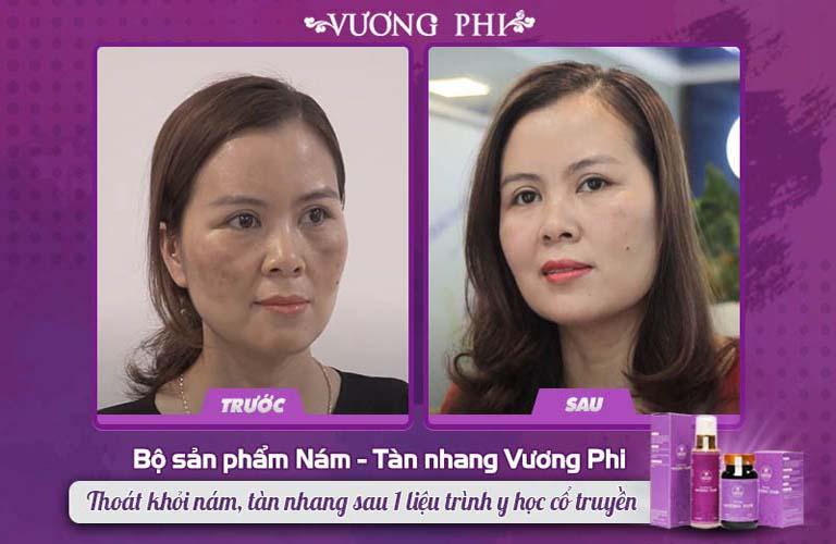 Làn da chị Nguyễn Thị Mơ thay đổi TRƯỚC - SAU khi trị nám với bộ sản phẩm Vương Phi
