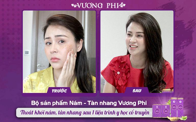 Lương Thu Trang trước và sau khi sử dụng BSP Vương Phi