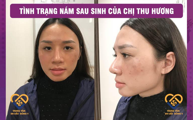 Tình trạng nám của chị Thu Hương thời điểm mới sinh xong