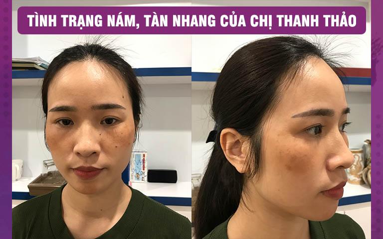 Da mặt của chị Thanh Thảo hỗn hợp cả nám và tàn nhang