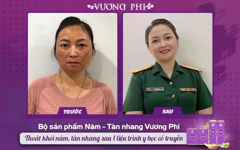 Từng thất bại với laser, thiếu tá Tạ Thị Vân đã phục hồi được làn da nhờ Bộ sản phẩm Vương Phi
